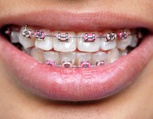 จัดฟันดัดฟัน