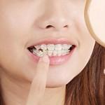 ขั้นตอน จัดฟัน ทุกเดือน…รู้ไว้ไม่มีพลาด